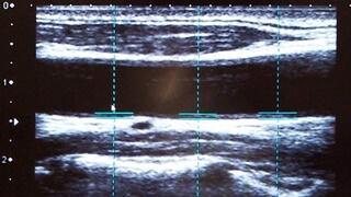 頸動脈超音波検査(頸動脈エコー)・血管壁厚の検査