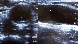 頸動脈超音波検査(頸動脈エコー)・プラーク